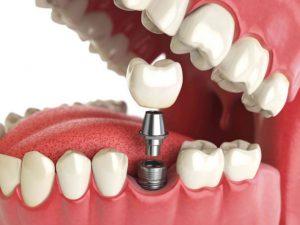 Можна палити після імплантації зубів