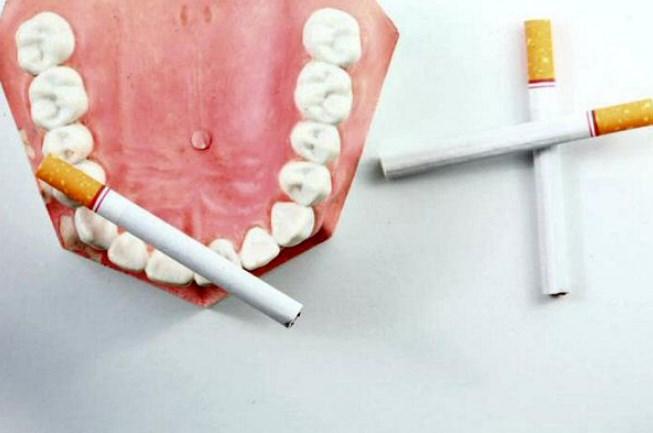 Негативний вплив сигарет на зуби людини
