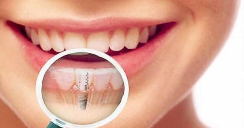курити до імплантації зуба