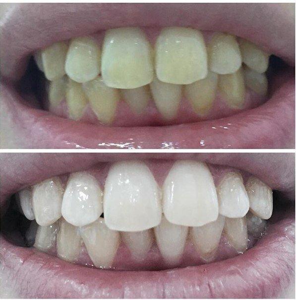 Білі зуби, які кидаються в очі! Перевірений спосіб на 100%