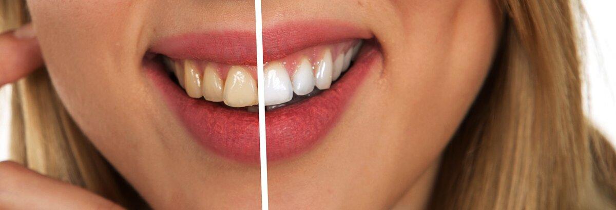 6 простих безпечних способів відбілювання зубів в домашніх умовах
