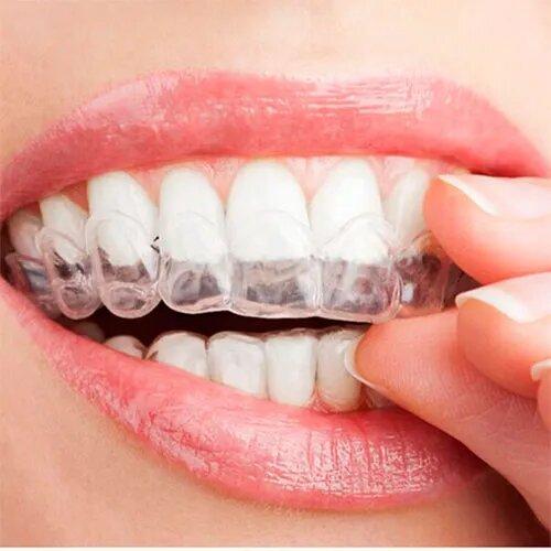 Капи для відбілювання зубів