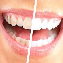 Білосніжна посмішка без стамотолога ціна питання 50 рублів