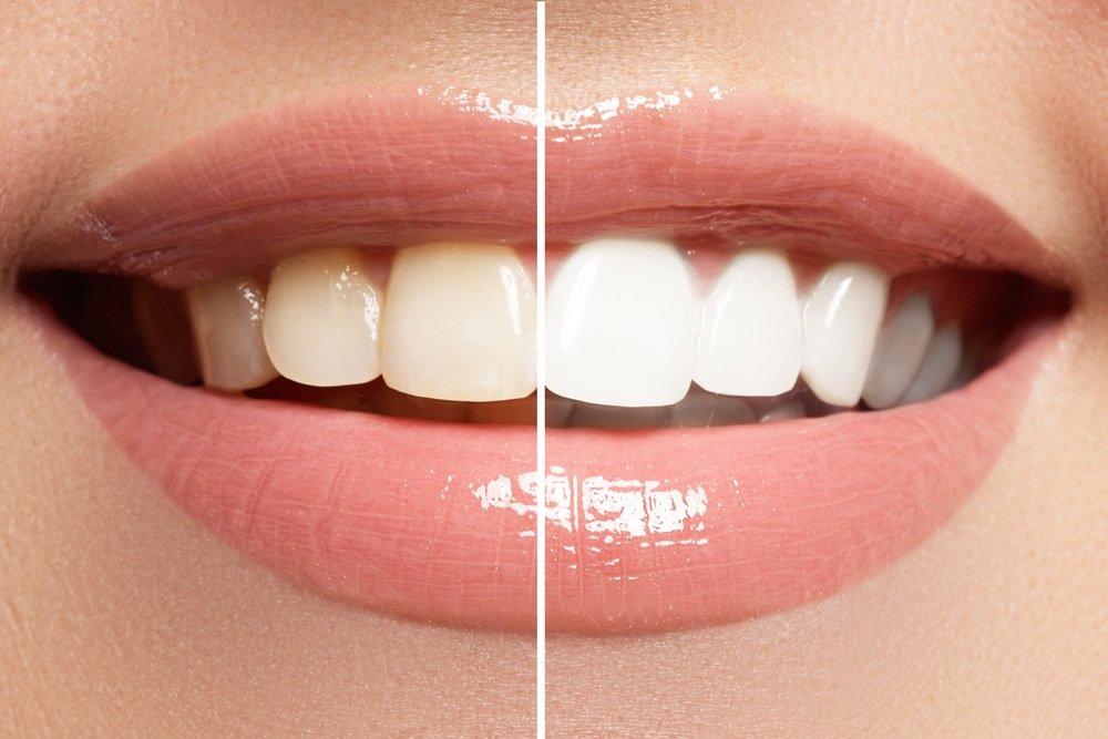 ДОВЕДЕНО! Що фарбує зубну емаль