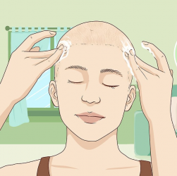 Так стимулюють ріст волосся при облисінні.