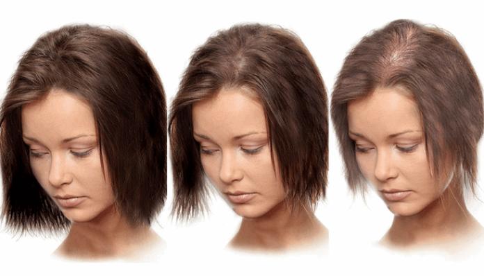 Витончення і випадання волосся. Як боротися?! Рекомендації трихолог