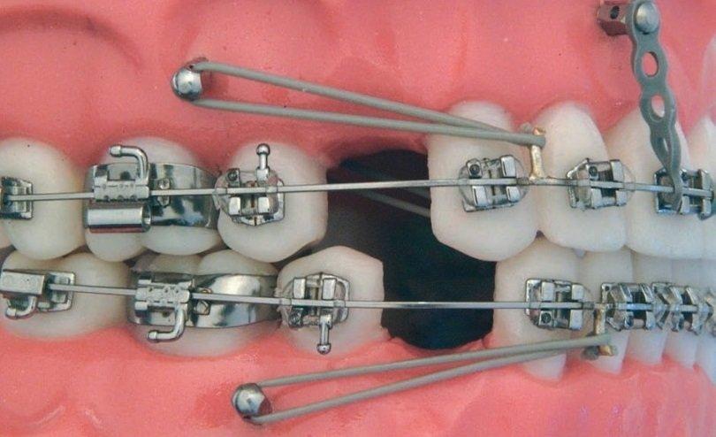 Ортодонтичні мікроімпланти